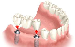 dental bridge - charlotte dentist