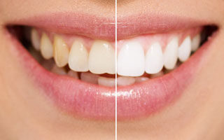 teeth whitening - charlotte dentist