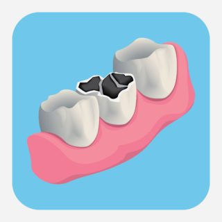 What to do when a tooth breaks