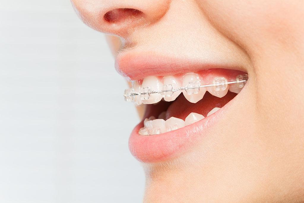 uptown Charlotte orthodontist
